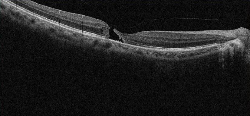 黄斑円孔術前2