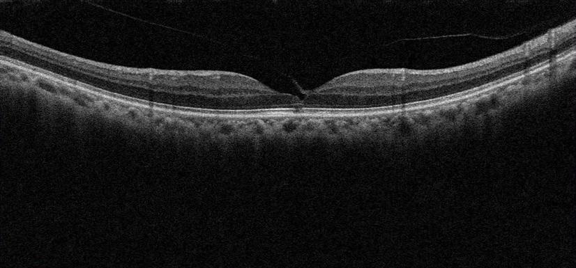黄斑円孔術前1